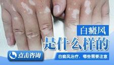 白癜风治疗与饮食注意